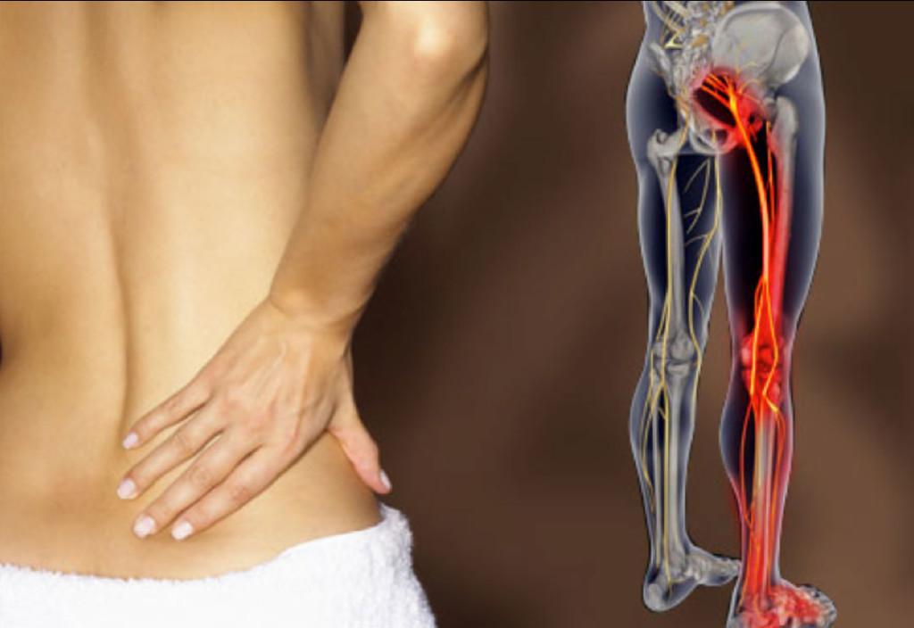 Sciatic nerve inflammation