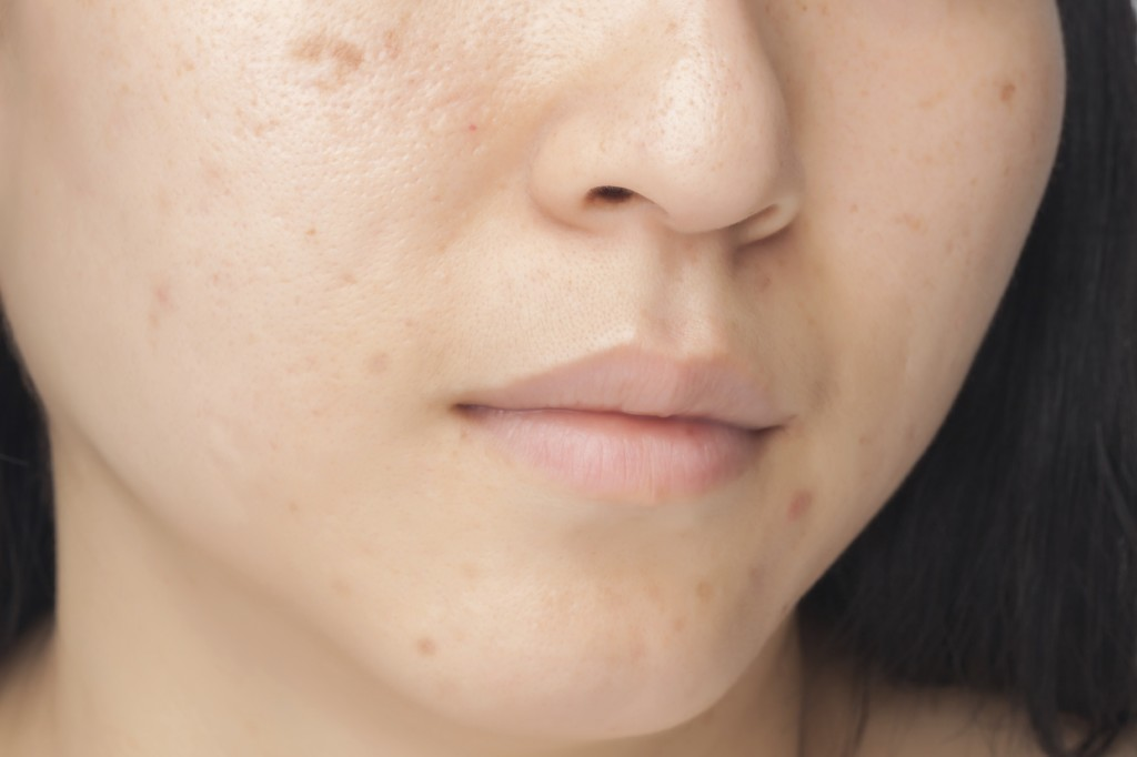 Spots and acne scars