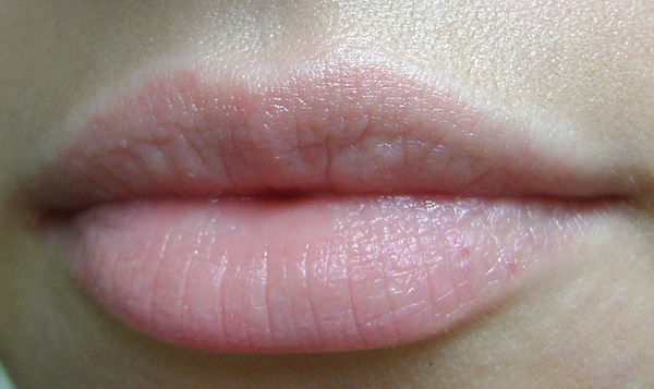 photo of the lips without shine